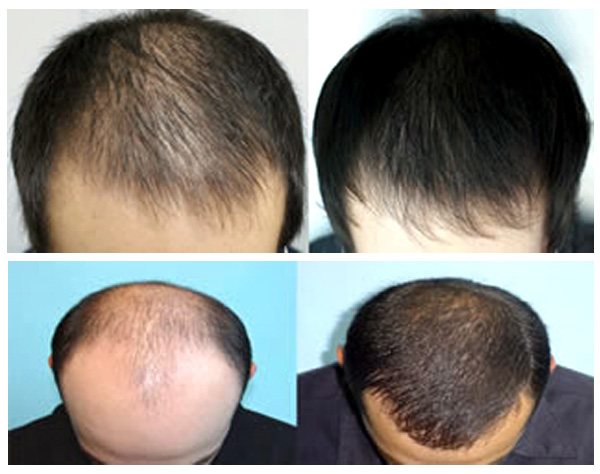 Image result for Hair Restoration Treatment Using Laser Therapy