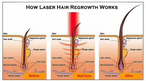 Spectrum Salon And Spa Laser Hair Growth